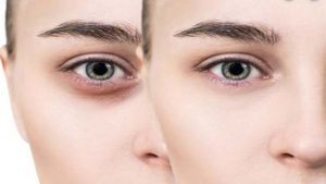 Read more about the article Cream to remove dark circles completely/ best eye cream 2021